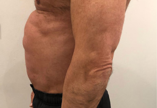 Bodyvision-Clinic-Prahan-Melbourne-Results-MMSlim-Treatment-1