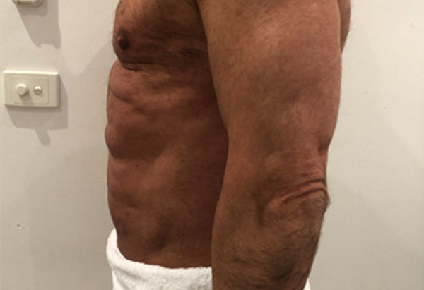 Bodyvision-Clinic-Prahan-Melbourne-Results-MMSlim-Treatment-2